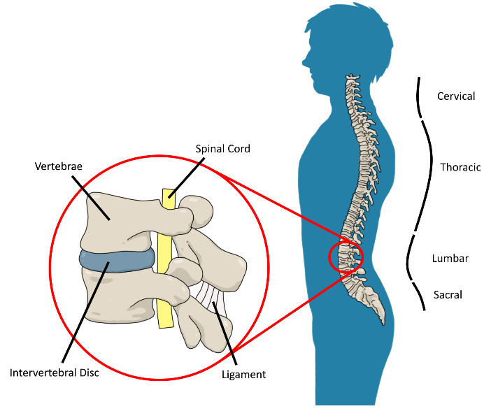 Tall People Back Pain and Back Problems: Disc Herniations